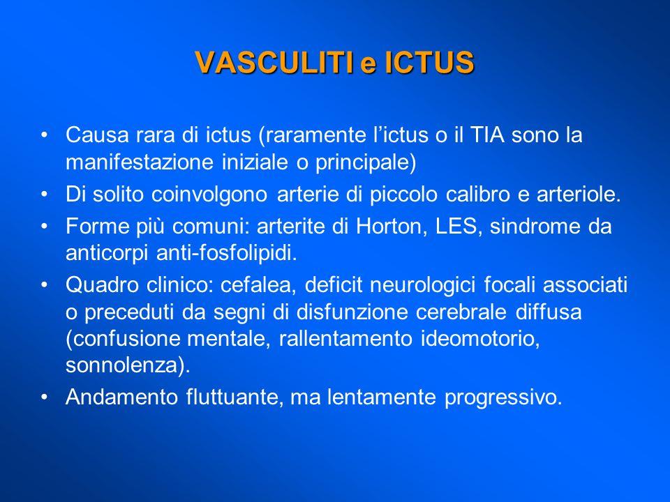 VASCULITI e ICTUS Causa rara di ictus (raramente l'ictus o il TIA sono la manifestazione iniziale o principale)