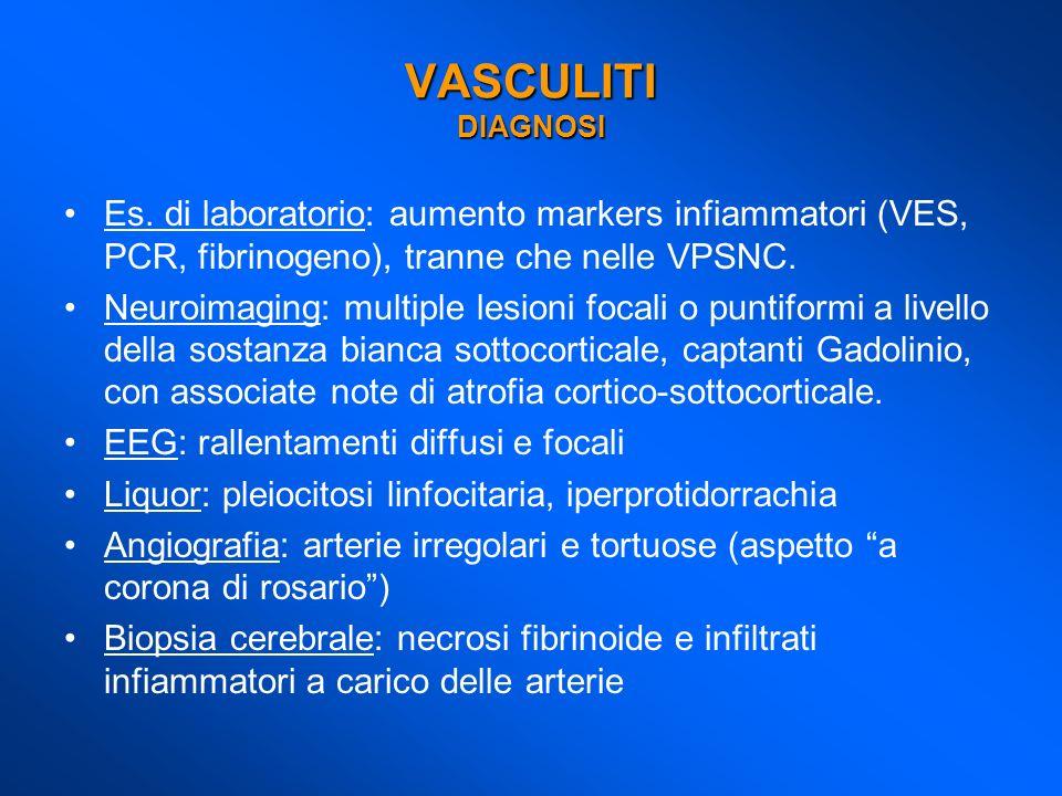 VASCULITI DIAGNOSI Es. di laboratorio: aumento markers infiammatori (VES, PCR, fibrinogeno), tranne che nelle VPSNC.
