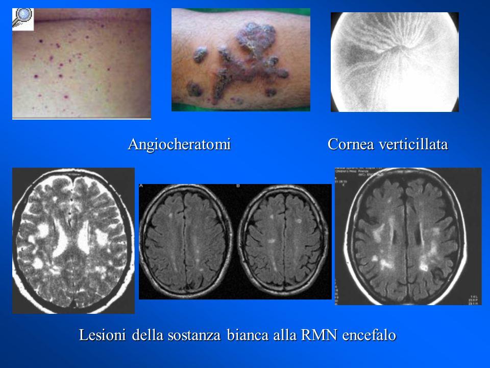 Angiocheratomi Cornea verticillata Lesioni della sostanza bianca alla RMN encefalo