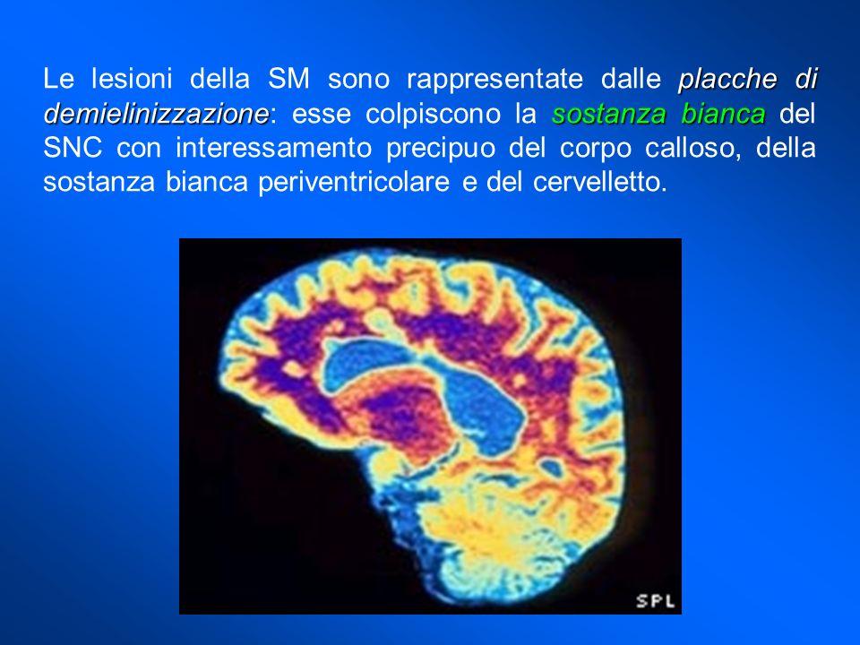 Le lesioni della SM sono rappresentate dalle placche di demielinizzazione: esse colpiscono la sostanza bianca del SNC con interessamento precipuo del corpo calloso, della sostanza bianca periventricolare e del cervelletto.