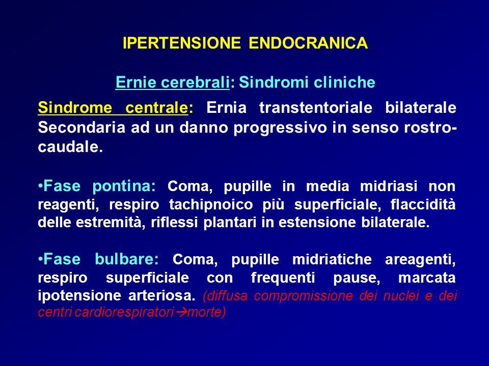 IPERTENSIONE ENDOCRANICA Ernie cerebrali: Sindromi cliniche