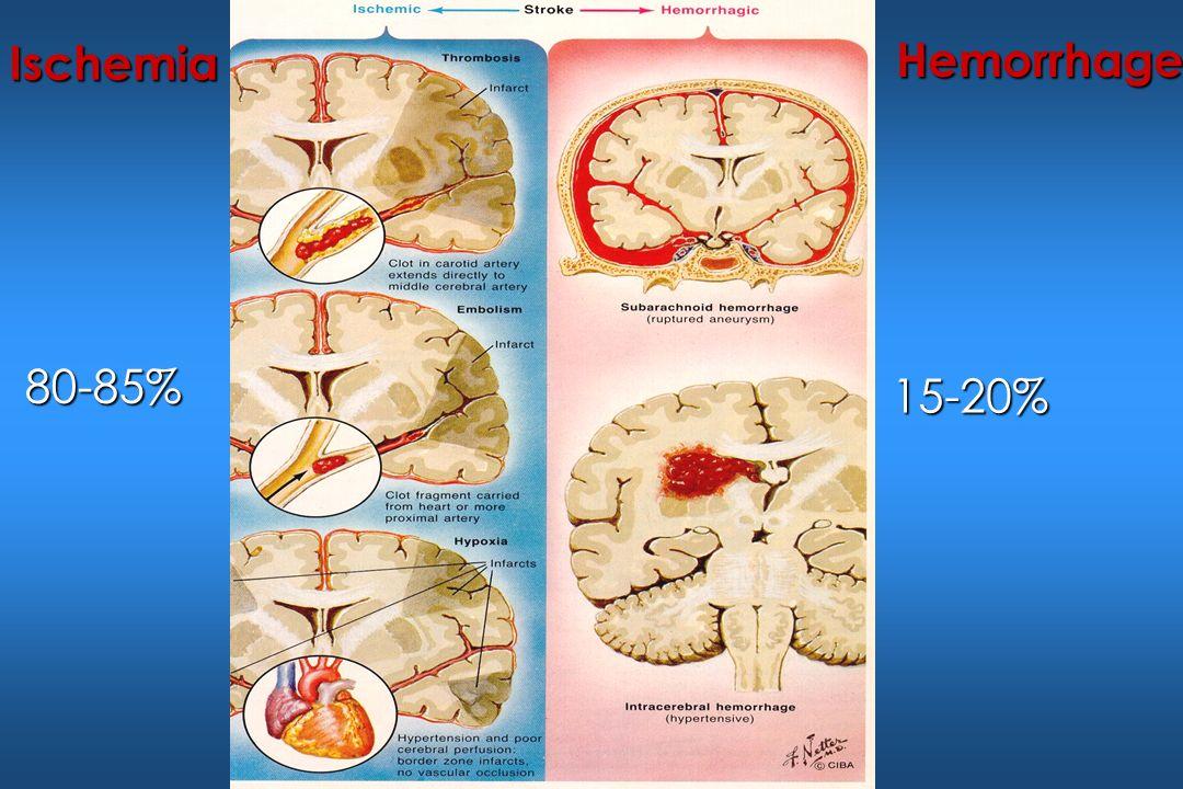 Ischemia Hemorrhage 80-85% 15-20%