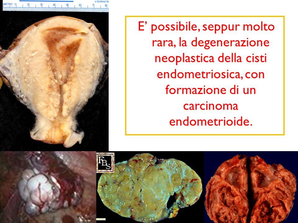 E' possibile, seppur molto rara, la degenerazione neoplastica della cisti endometriosica, con formazione di un carcinoma endometrioide.