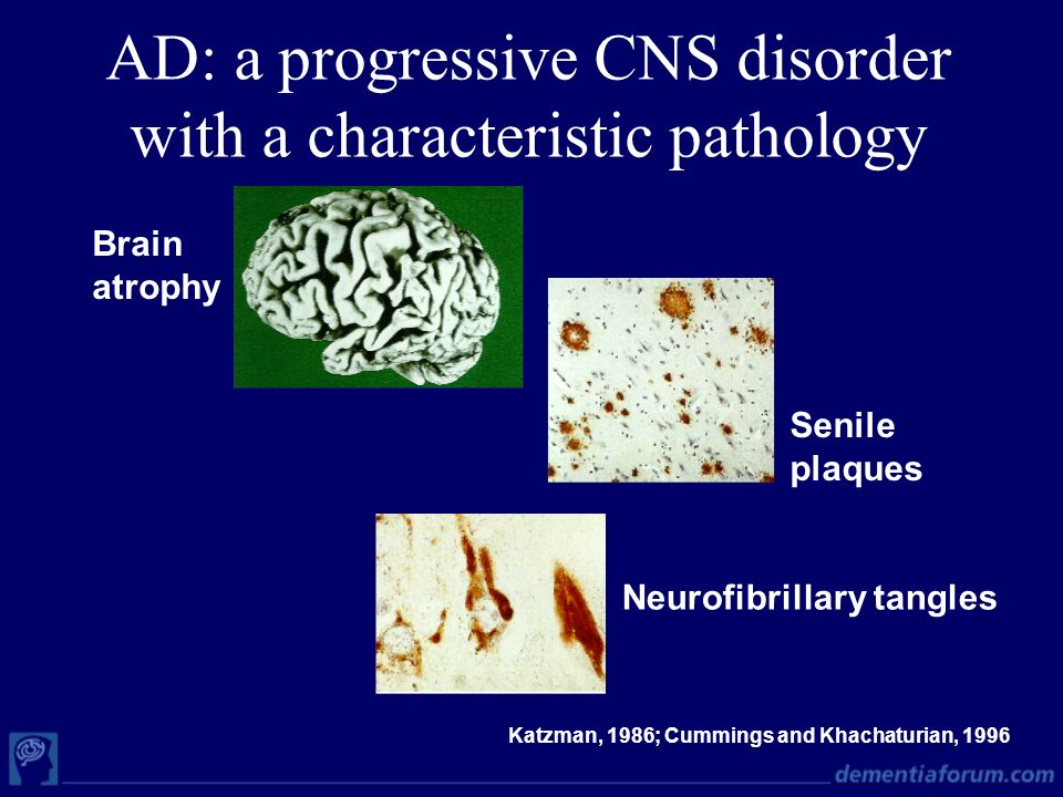 AD: a progressive CNS disorder with a characteristic pathology