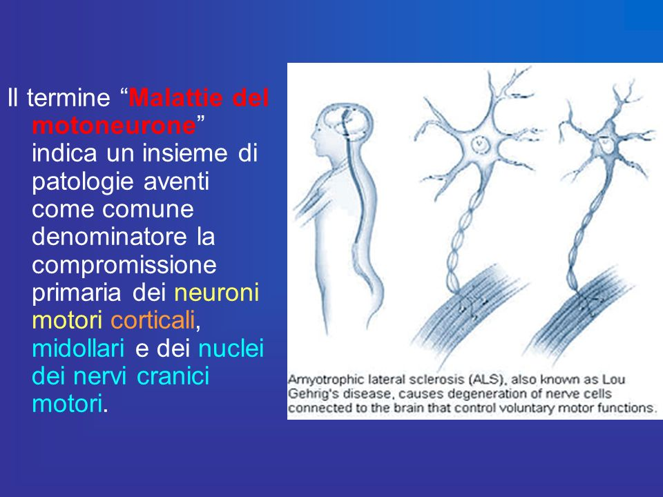 Il termine Malattie del motoneurone indica un insieme di patologie aventi come comune denominatore la compromissione primaria dei neuroni motori corticali, midollari e dei nuclei dei nervi cranici motori.