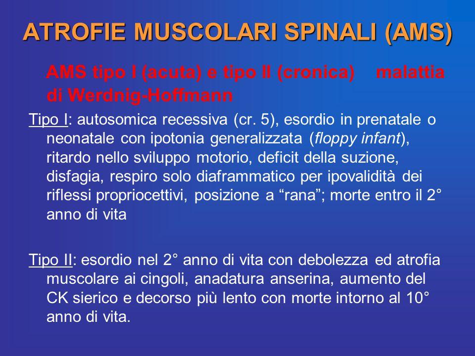 ATROFIE MUSCOLARI SPINALI (AMS)