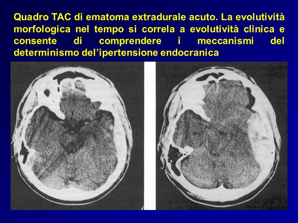 Quadro TAC di ematoma extradurale acuto