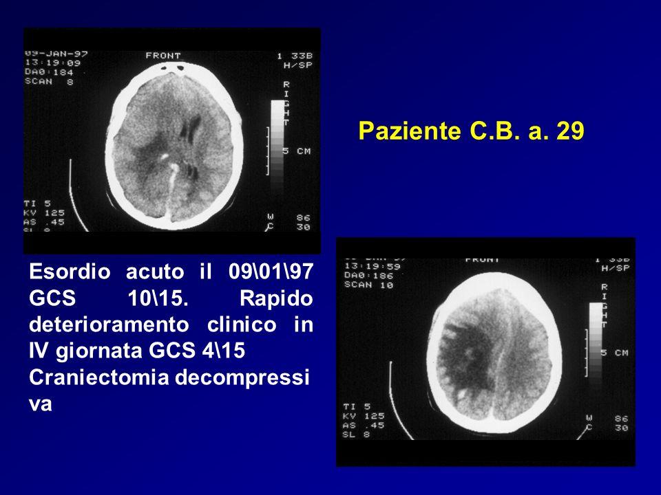 Paziente C.B. a. 29 Esordio acuto il 09\01\97 GCS 10\15. Rapido deterioramento clinico in IV giornata GCS 4\15.