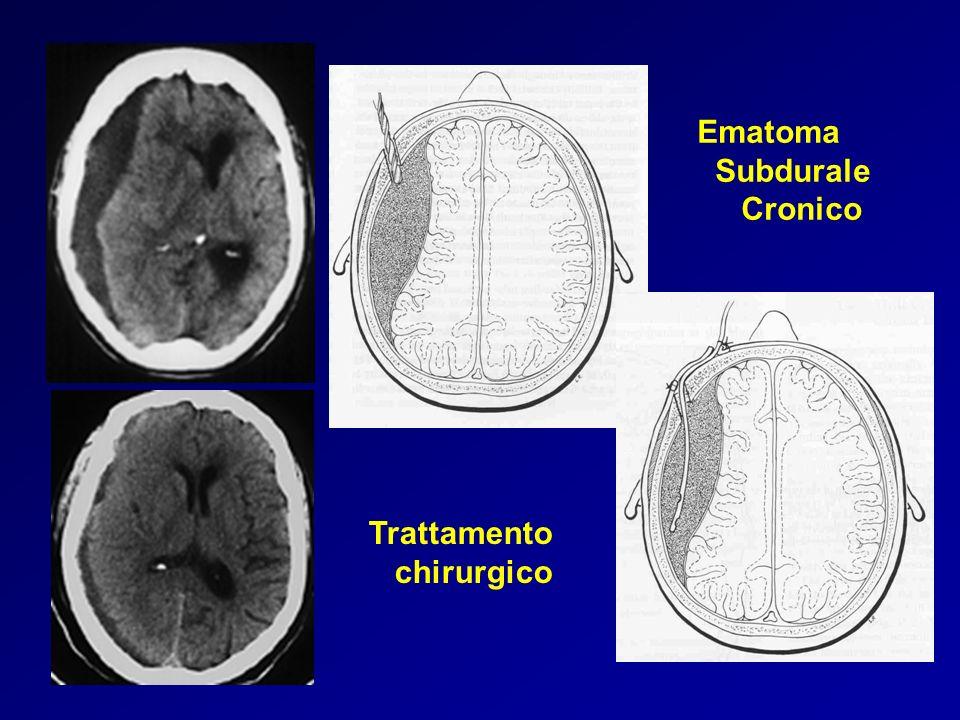 Ematoma Subdurale Cronico Trattamento chirurgico