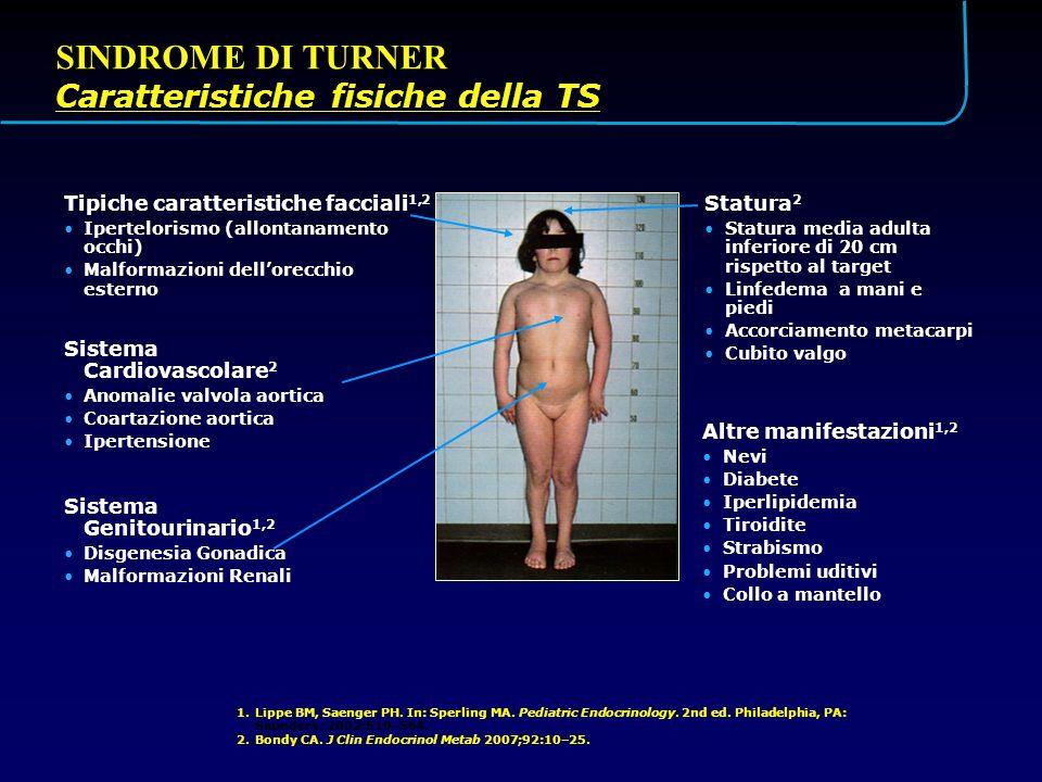 SINDROME DI TURNER Caratteristiche fisiche della TS Statura2