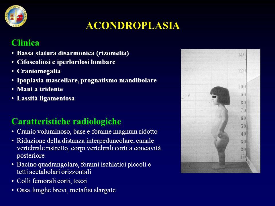 ACONDROPLASIA Clinica Caratteristiche radiologiche