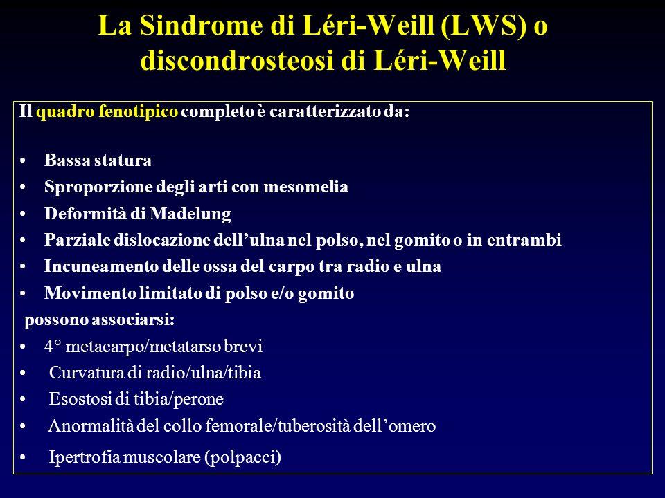 La Sindrome di Léri-Weill (LWS) o discondrosteosi di Léri-Weill