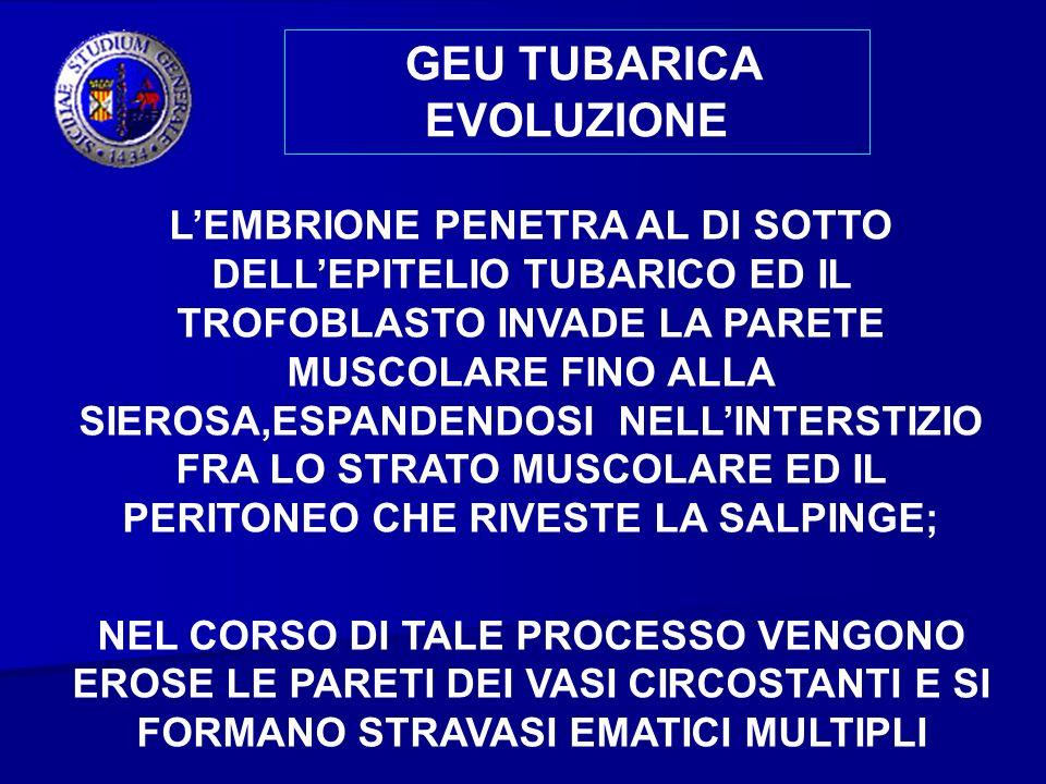 GEU TUBARICA EVOLUZIONE