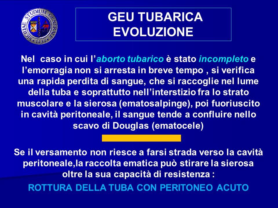 GEU TUBARICA EVOLUZIONE ROTTURA DELLA TUBA CON PERITONEO ACUTO