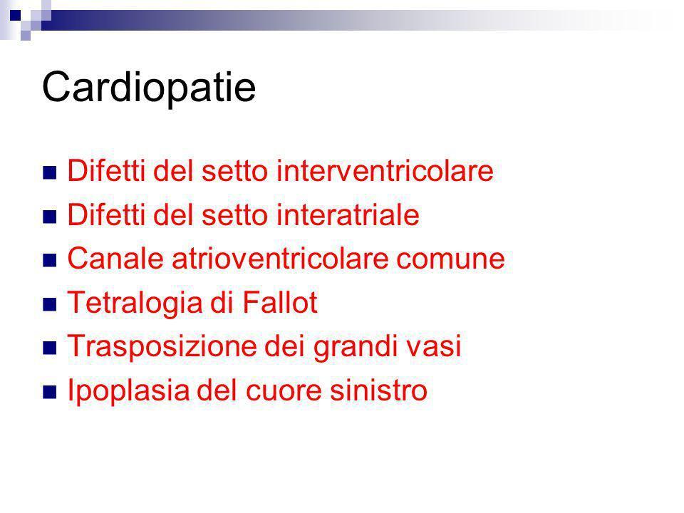 Cardiopatie Difetti del setto interventricolare