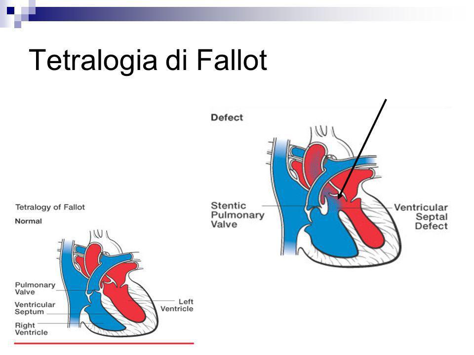Tetralogia di Fallot