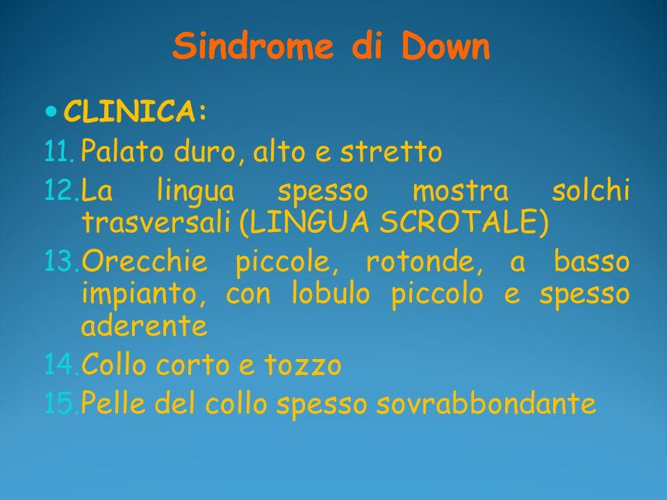 Sindrome di Down CLINICA: Palato duro, alto e stretto