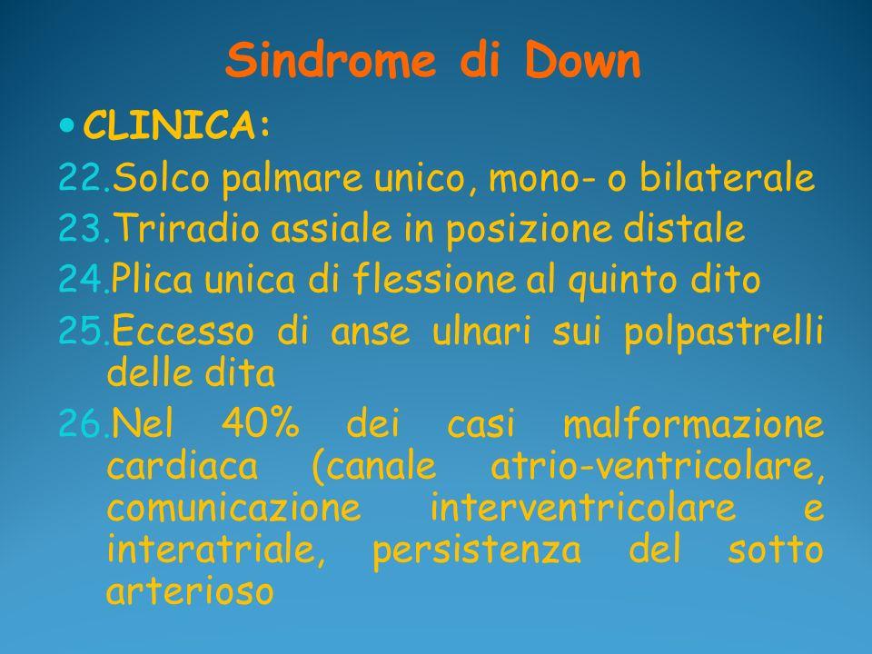 Sindrome di Down CLINICA: Solco palmare unico, mono- o bilaterale