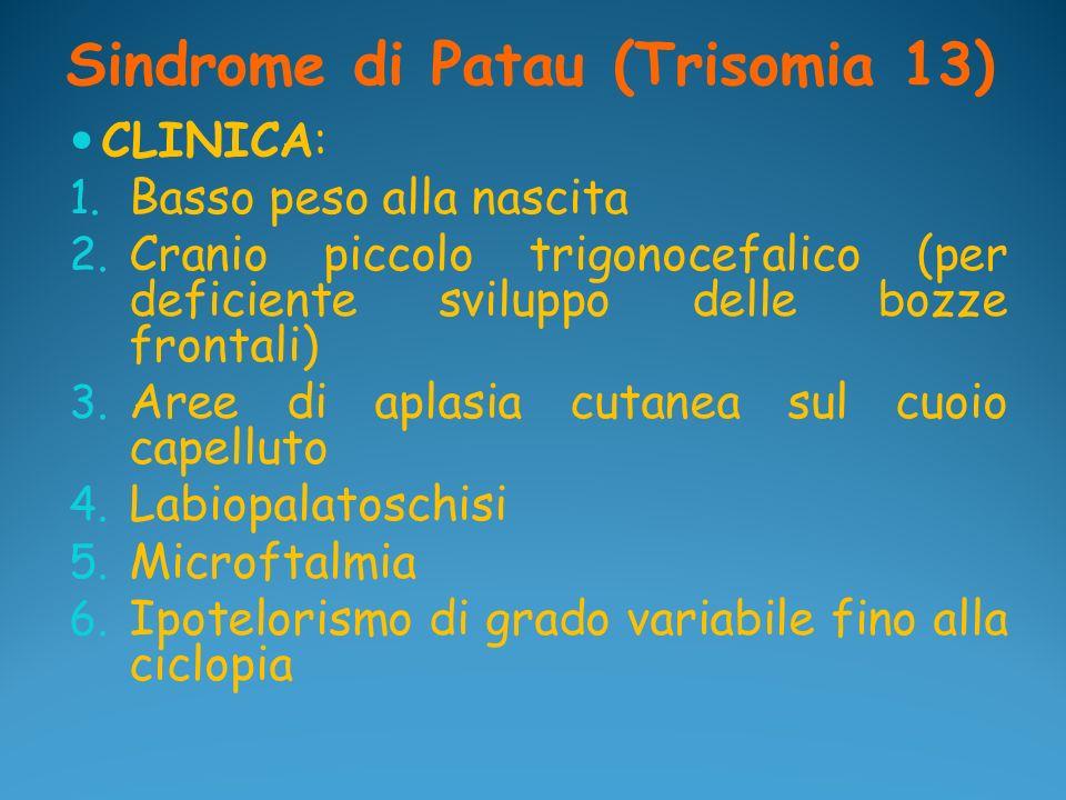 Sindrome di Patau (Trisomia 13)