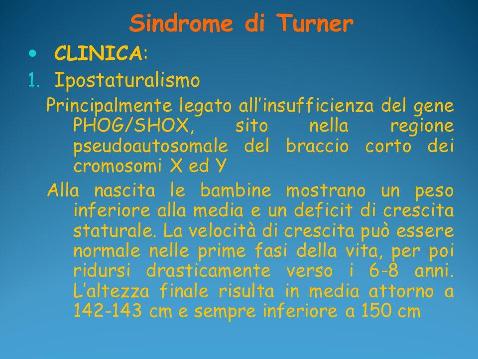 Sindrome di Turner CLINICA: Ipostaturalismo