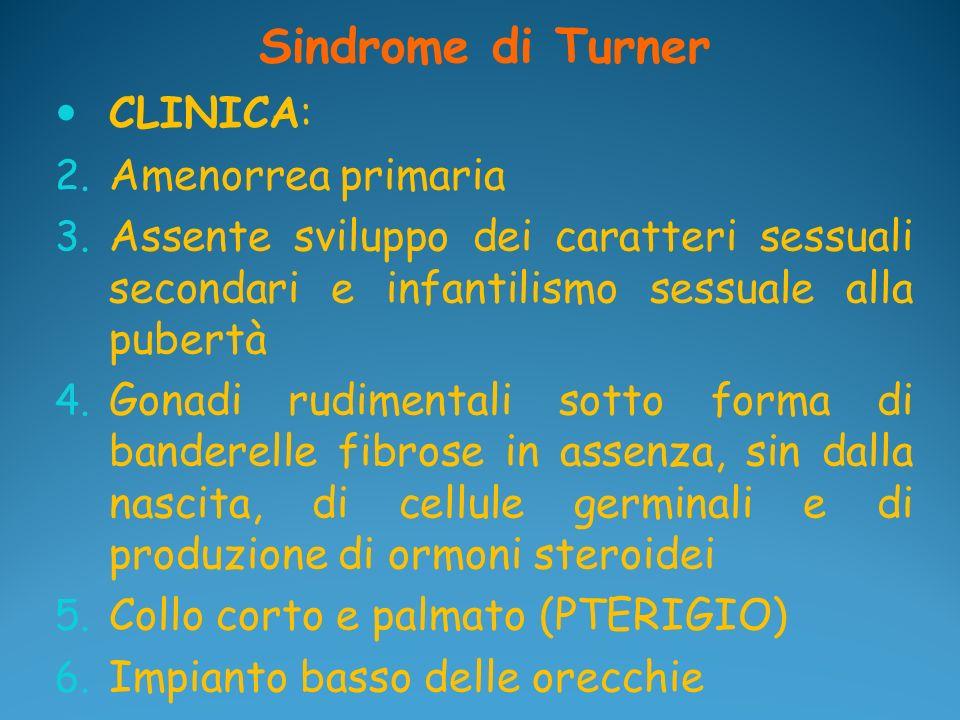 Sindrome di Turner CLINICA: Amenorrea primaria