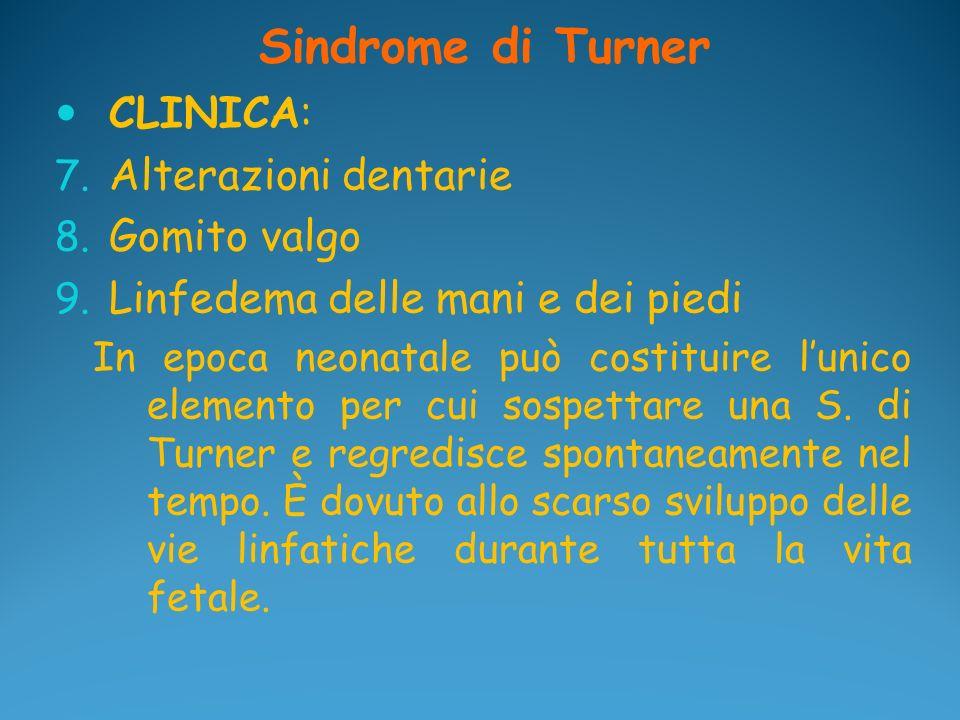Sindrome di Turner CLINICA: Alterazioni dentarie Gomito valgo