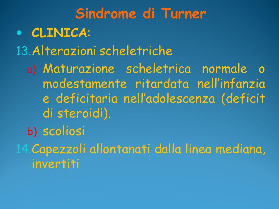 Sindrome di Turner CLINICA: Alterazioni scheletriche