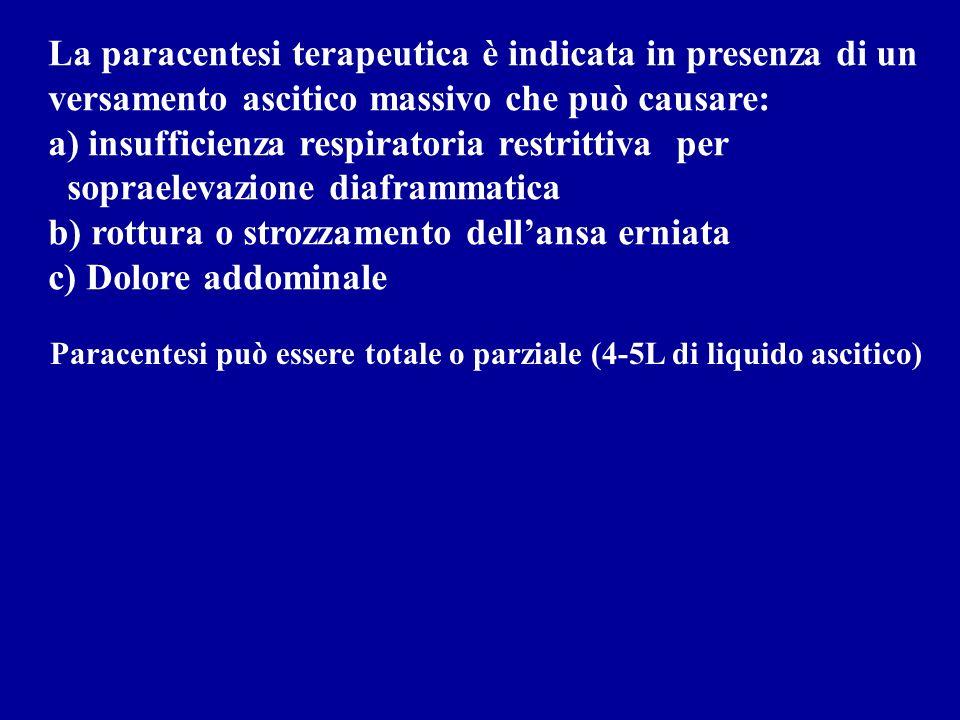 La paracentesi terapeutica è indicata in presenza di un
