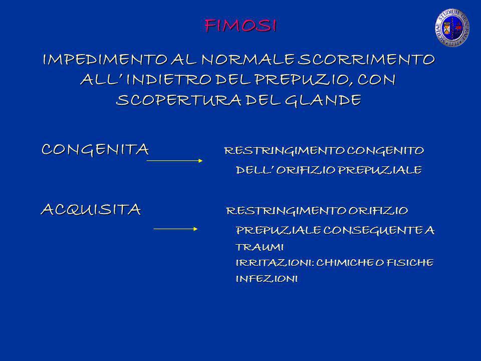 FIMOSI IMPEDIMENTO AL NORMALE SCORRIMENTO ALL' INDIETRO DEL PREPUZIO, CON SCOPERTURA DEL GLANDE. CONGENITA RESTRINGIMENTO CONGENITO.