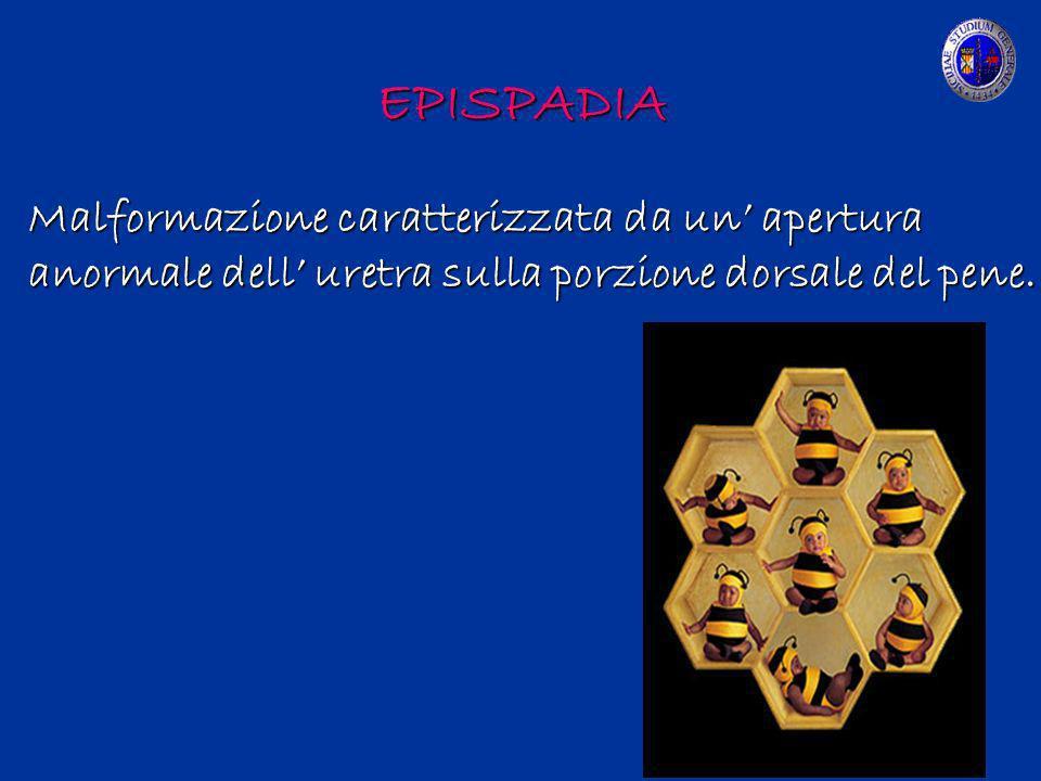 EPISPADIA Malformazione caratterizzata da un' apertura