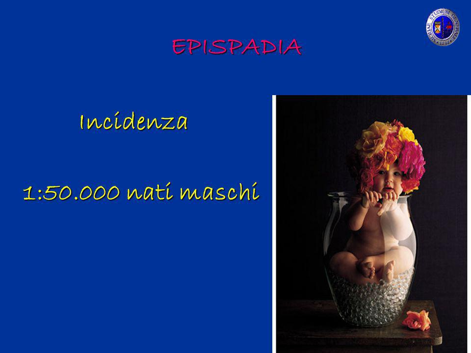 EPISPADIA Incidenza 1:50.000 nati maschi