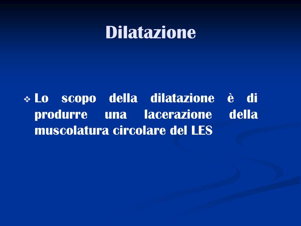 DilatazioneLo scopo della dilatazione è di produrre una lacerazione della muscolatura circolare del LES.