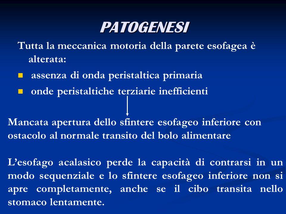 PATOGENESITutta la meccanica motoria della parete esofagea è alterata: assenza di onda peristaltica primaria.