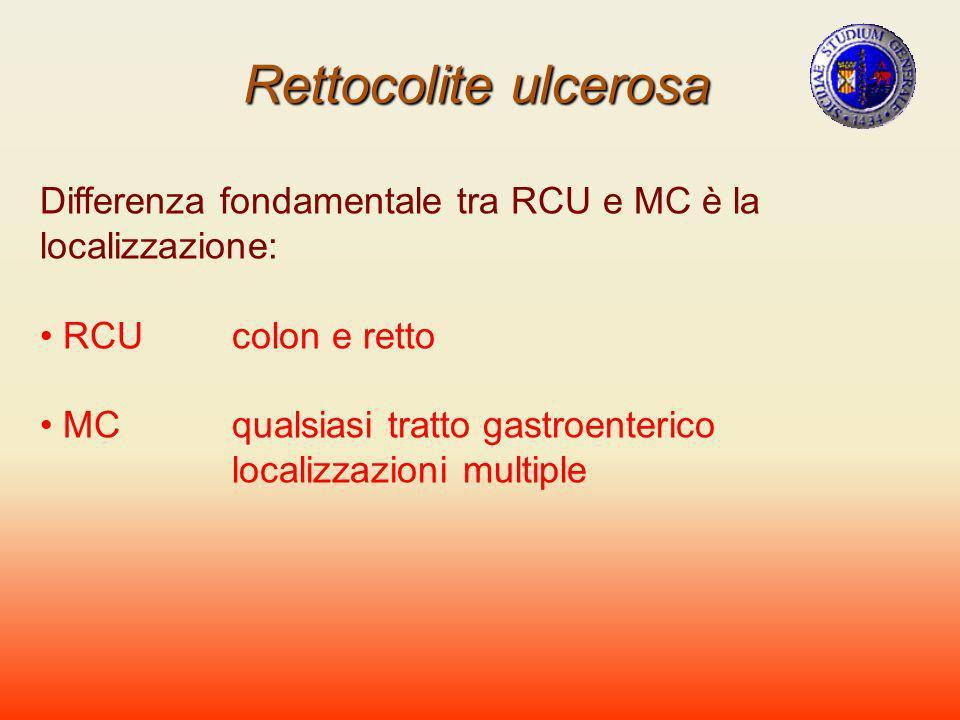 Rettocolite ulcerosa Differenza fondamentale tra RCU e MC è la localizzazione: RCU colon e retto. MC qualsiasi tratto gastroenterico.