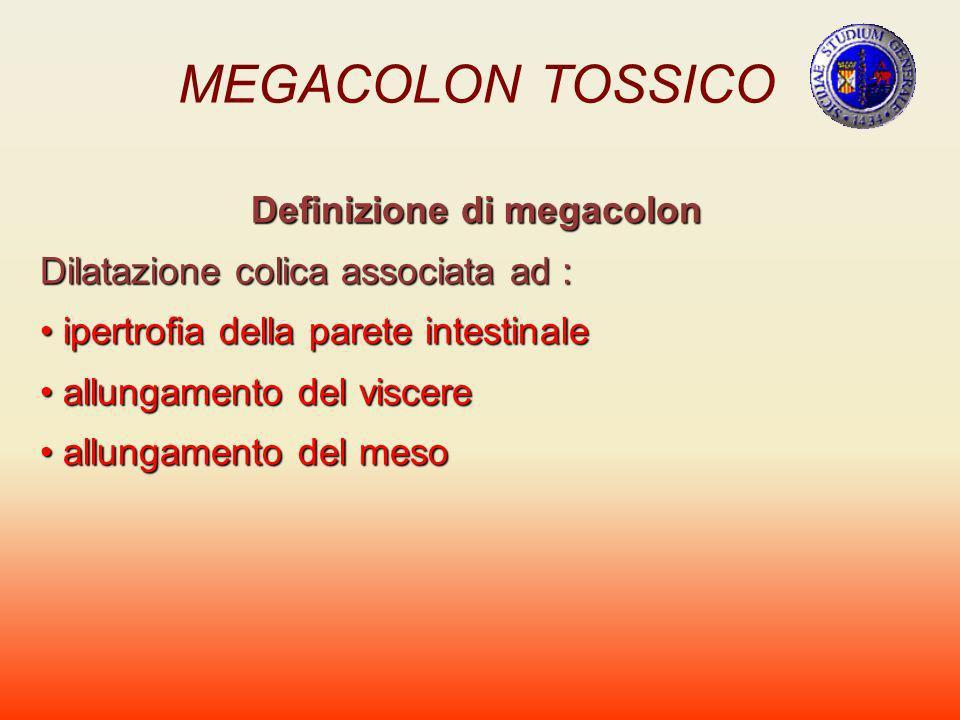 Definizione di megacolon