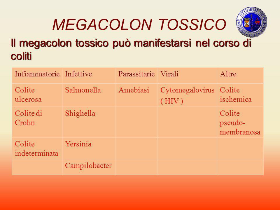 MEGACOLON TOSSICO Il megacolon tossico può manifestarsi nel corso di coliti. Infiammatorie. Infettive.
