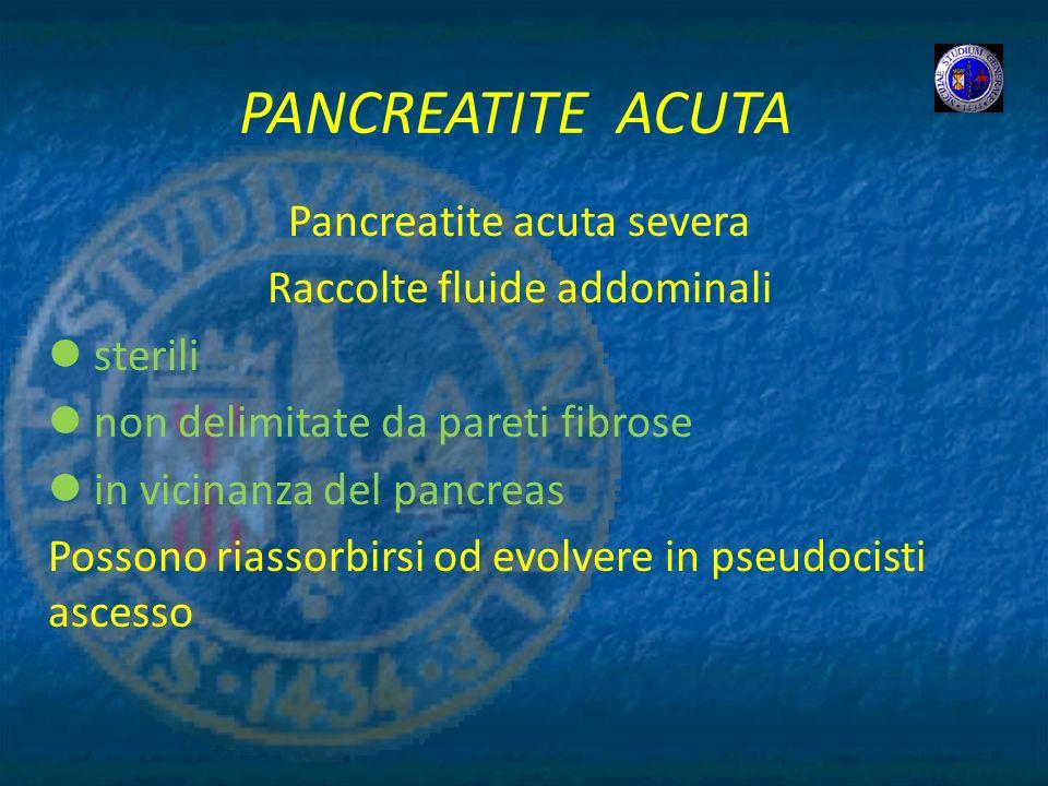PANCREATITE ACUTA Pancreatite acuta severa Raccolte fluide addominali