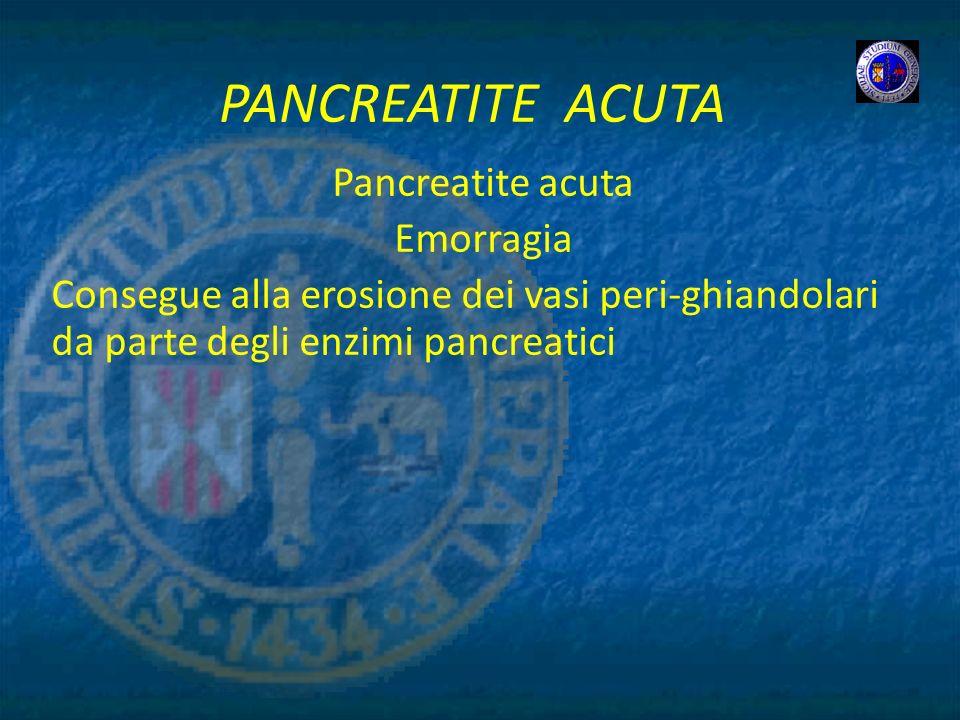 PANCREATITE ACUTA Pancreatite acuta Emorragia
