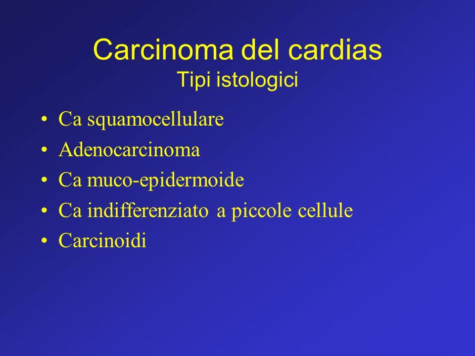 Carcinoma del cardias Tipi istologici
