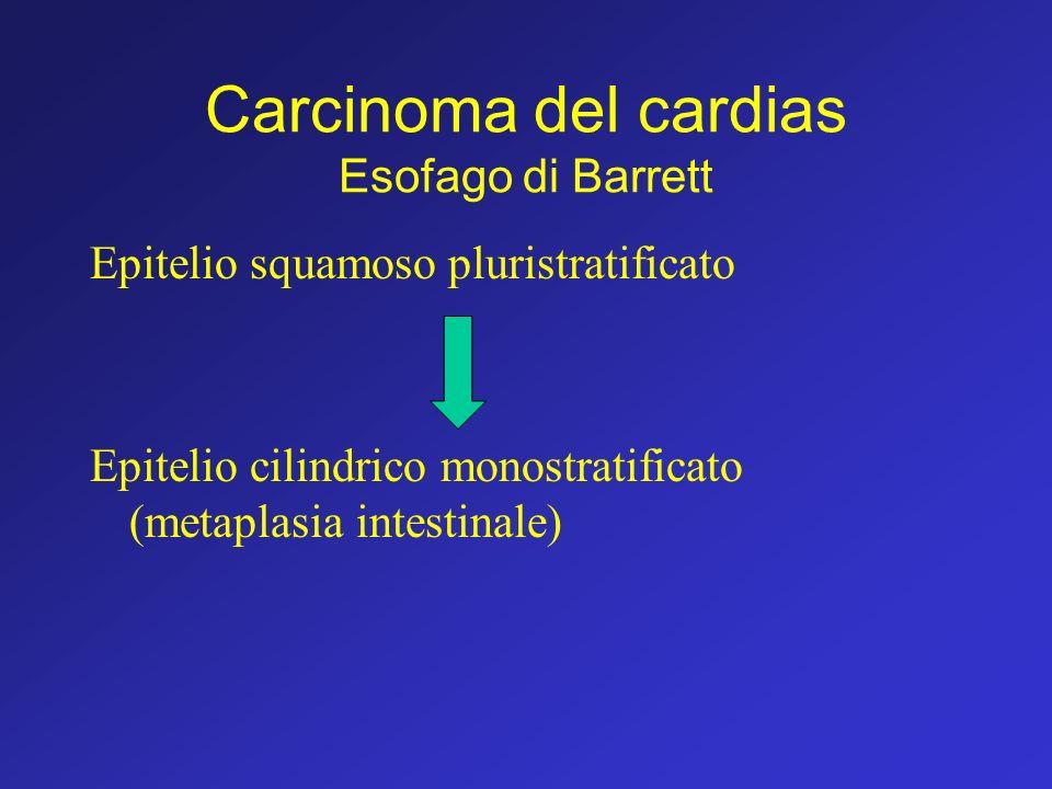 Carcinoma del cardias Esofago di Barrett