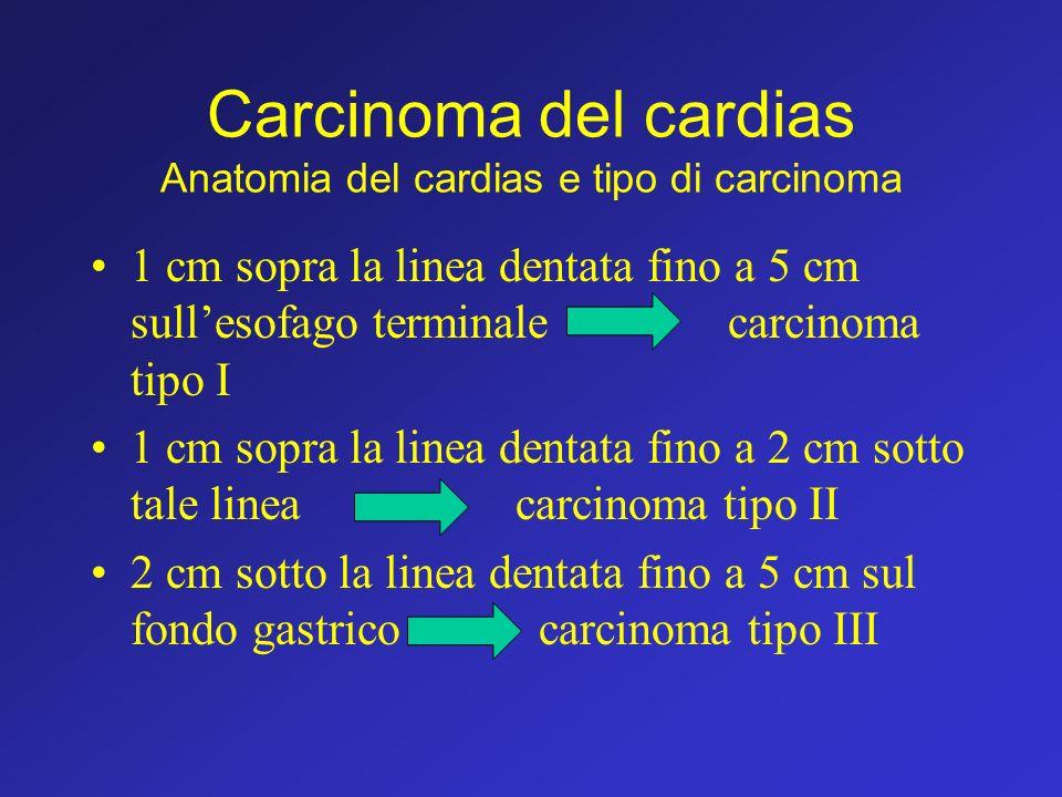 Carcinoma del cardias Anatomia del cardias e tipo di carcinoma