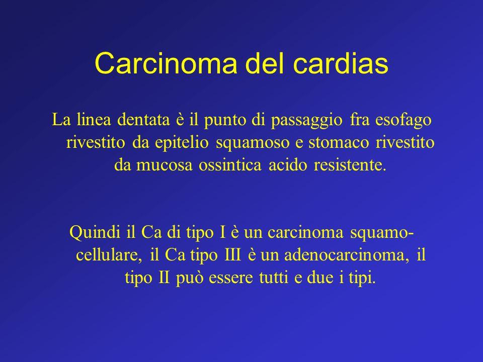 Carcinoma del cardias
