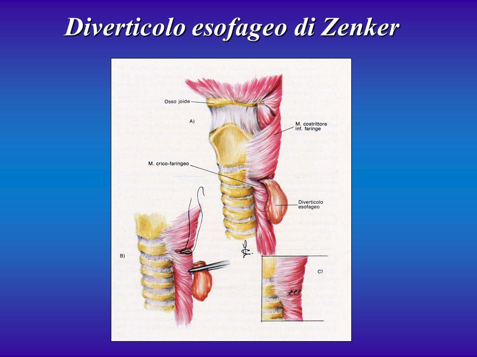 Diverticolo esofageo di Zenker