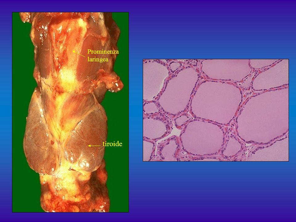 tiroide Prominenza laringea