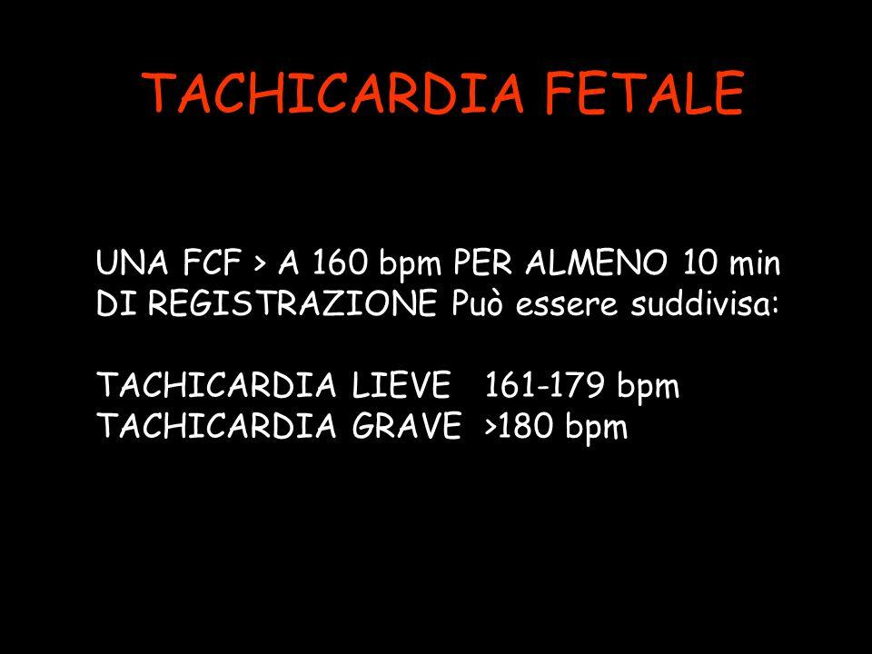 TACHICARDIA FETALE UNA FCF > A 160 bpm PER ALMENO 10 min
