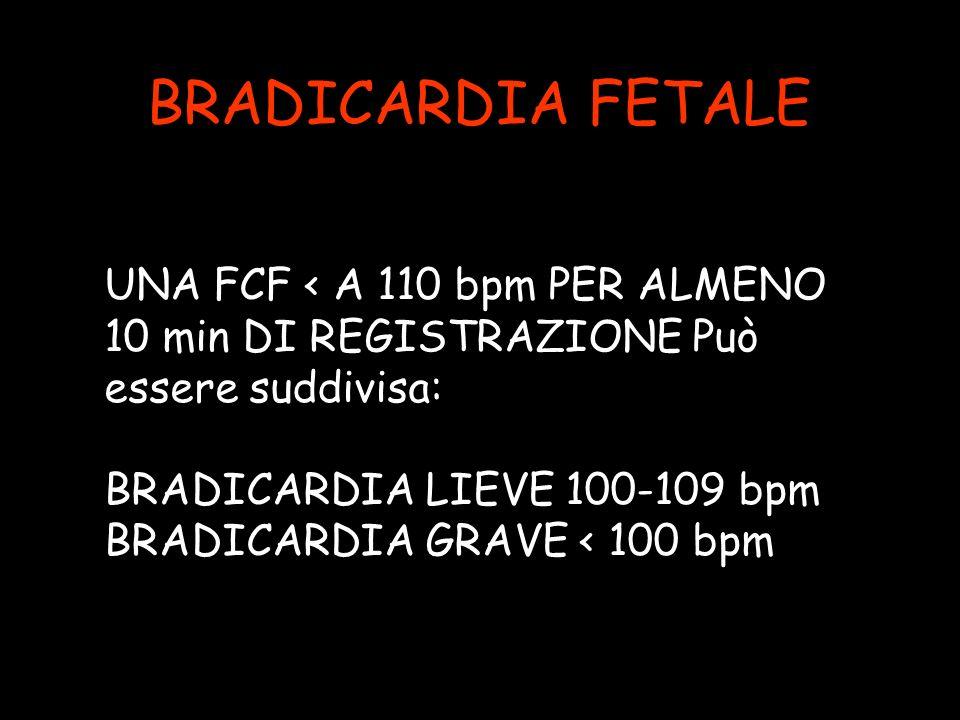 BRADICARDIA FETALE UNA FCF < A 110 bpm PER ALMENO 10 min DI REGISTRAZIONE Può essere suddivisa: BRADICARDIA LIEVE 100-109 bpm.