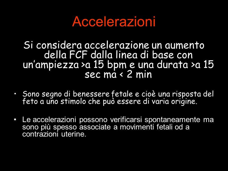 Accelerazioni Si considera accelerazione un aumento della FCF dalla linea di base con un'ampiezza >a 15 bpm e una durata >a 15 sec ma < 2 min.