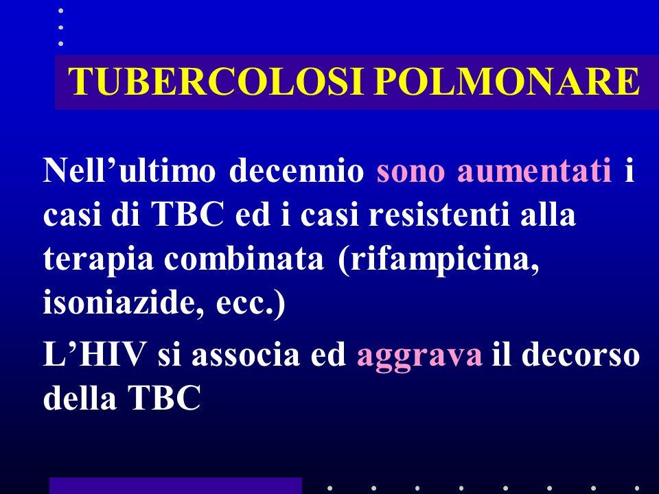 TUBERCOLOSI POLMONARE