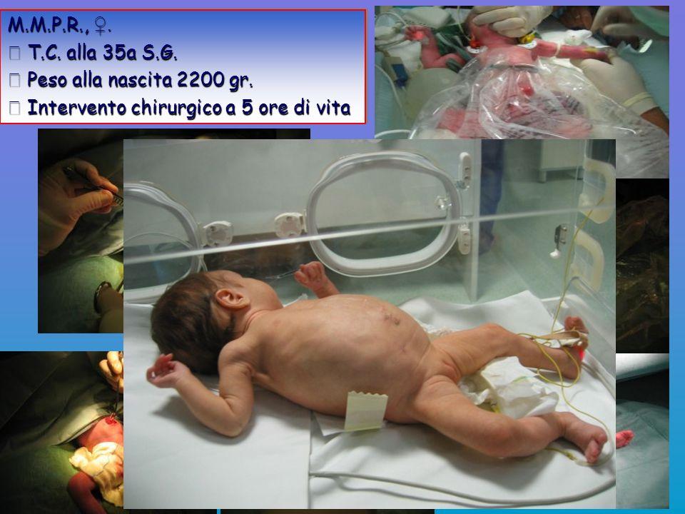 M.M.P.R., ♀.  T.C. alla 35a S.G.  Peso alla nascita 2200 gr.