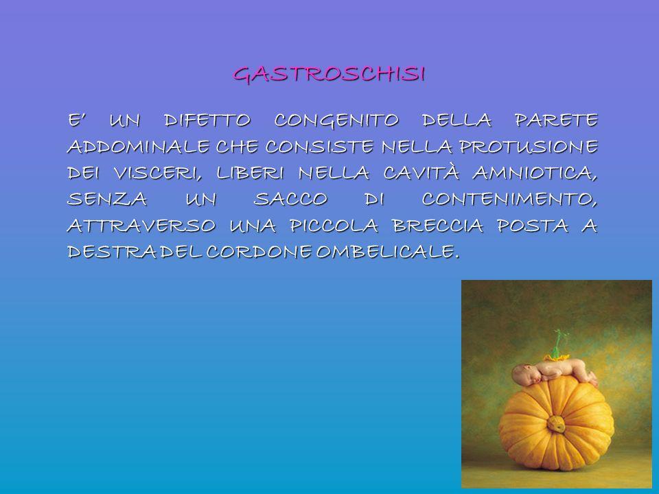 GASTROSCHISI